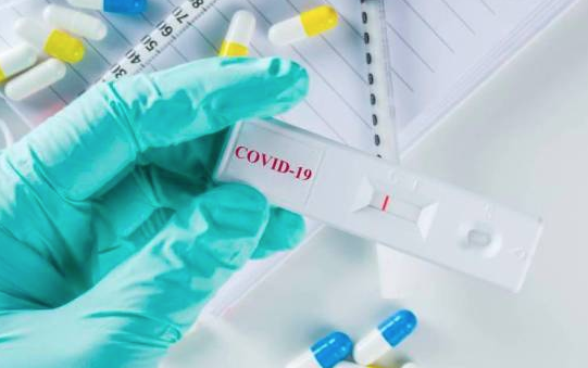 Esta es la cantidad de pruebas rápidas y de PCR que ha realizado República Dominicana