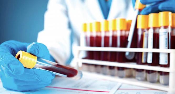 Hematología: De qué forma afecta el Covid-19 a la sangre