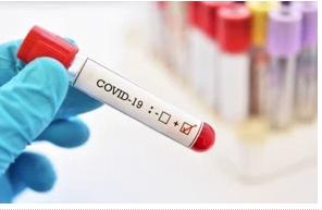 Reportan 425 casos nuevos de coronavirus; hay 157 pacientes en UCI y 75 con ventiladores