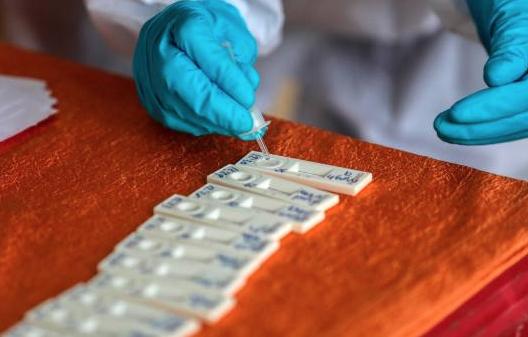 Desarrollan en Japón un test de anticuerpos de COVID usando gusanos de seda